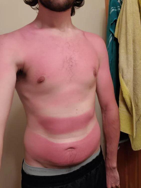 23 People Who Got Sunburned Rather Than Suntanned. Holidaymakers and Their 'Sunny' Adventures!