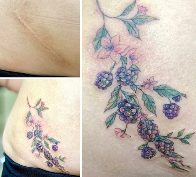 15 Artistic Tattoos That Cover Scars. The Defects Disappear Under Beautiful Ornaments