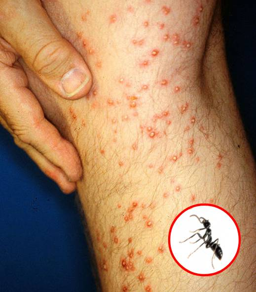 How to Recognize 7 Kinds of Common Insect Bites